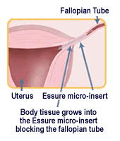 Essure Safety examined by FDA